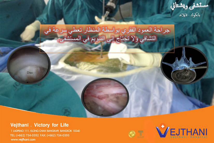 Laparoscopic-spinal-surgery