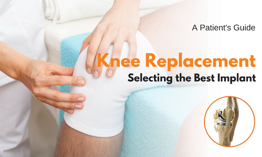 Knee-replacement-implants