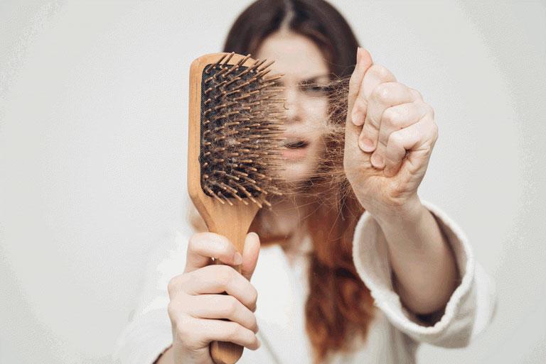 Hair-Loss-768x513