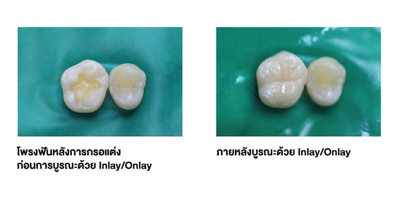 Single-Visit-Ceramic-Inlays-pic3