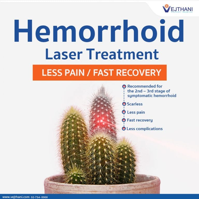 Hemorrhoids laser treatment