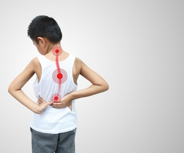 Treating-Scoliosis-in-Children