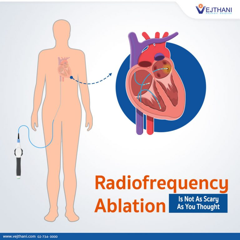 Radiofrequency ablation,