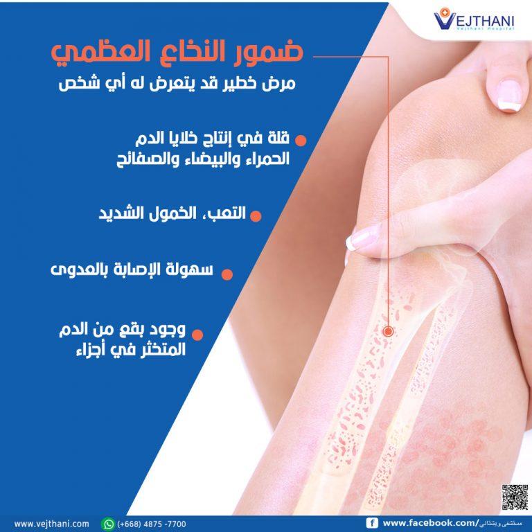 ضمور النخاع العظمي