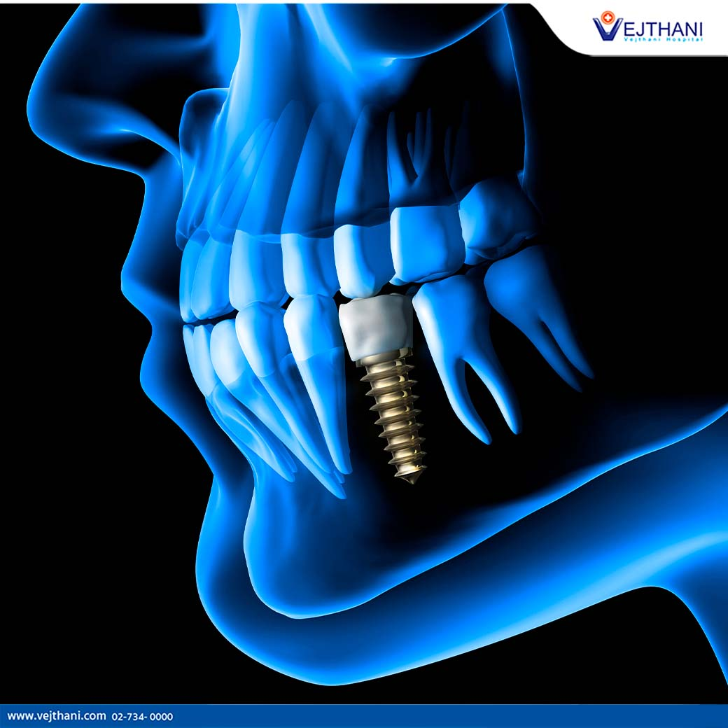 Contact Vejthani Hospital for Dental Implants in Thailand